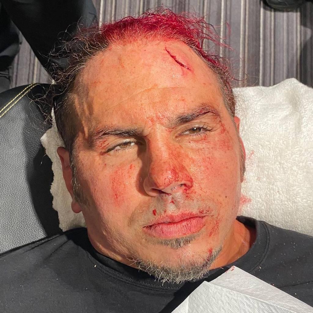 Nueva lesión Matt Hardy AEW-Ph_ Instagram Matt Hardy-www.wrestlingadictos.com