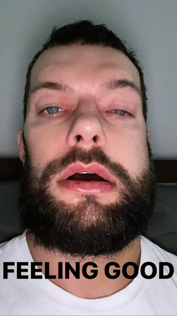 Finn Bálor tiempo recuperación lesión